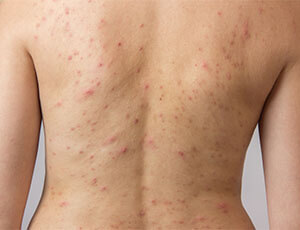 back acne treatments for men and women