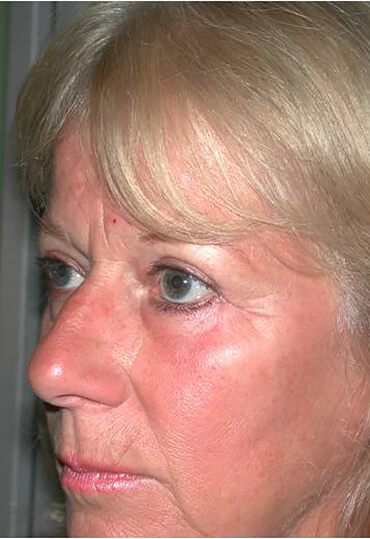 Brow lift female patients after surgery