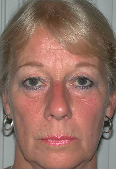 brow lift surgery female patient frontal view pre surgery