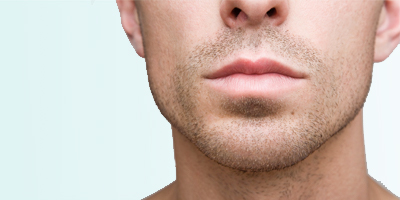 chin implants for men, genioplasty for men