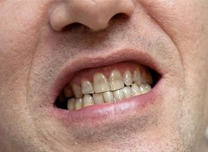male patient with worn discoloured teeth