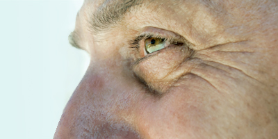 upper eyelid surgery for men, upper blepharoplasty for men