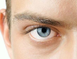 Eyelid blepharoplasty surgery for men