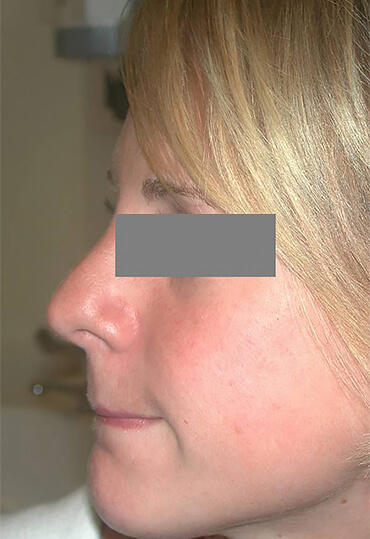 female nose correction after surgery