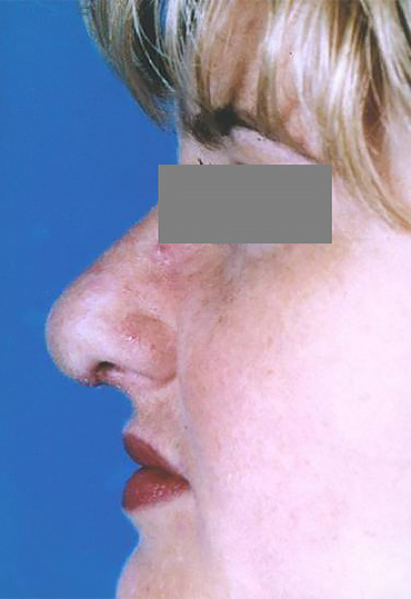 female nose surgery after image.