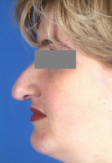 female nose surgery before image
