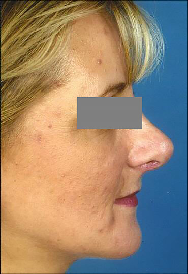 female rhinoplasty patient after surgery