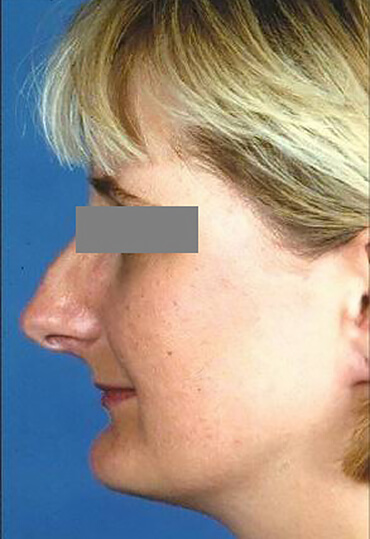 female rhinoplasty patient before surgery