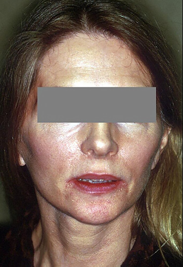 Genioplasty and facelift female patient after surgery