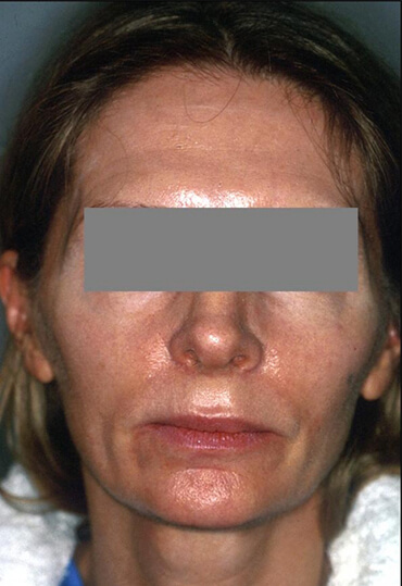 Genioplasty & Facelift female patient before surgery