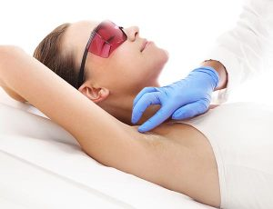 Removing hair from underarms with laser
