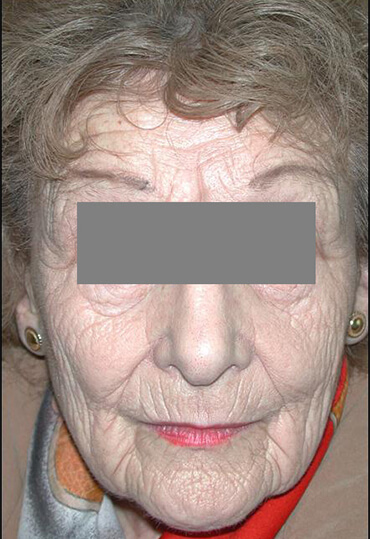 laser resurfacing patient before treatment