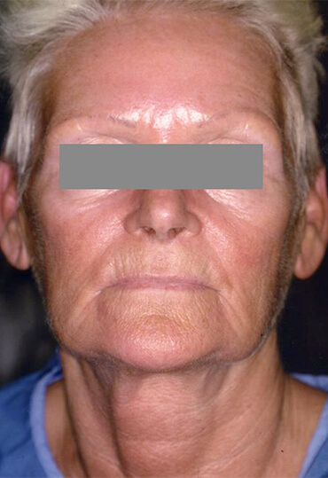 Facial laser resurfacing female patient before treatment