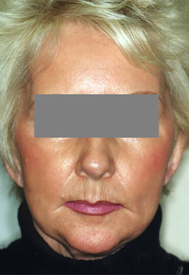 facial laser resurfacing female patient following treatment
