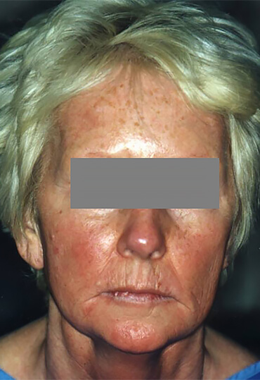 Facial laser resurfacing female patient, pre treatment