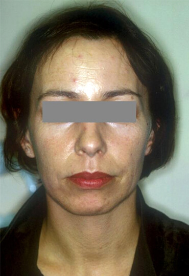 laser skin resurfacing treatment, female patient, after procedure