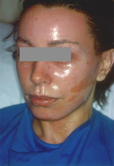 laser skin resurfacing treatment, before pictures