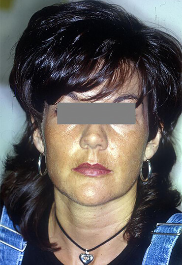 laser resurfacing treatment for female patient, after procedure at Wentworth Clinic