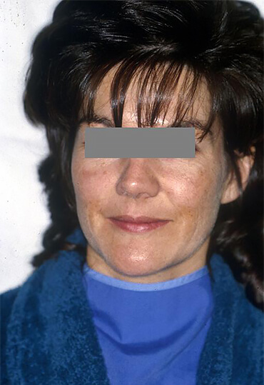 laser resurfacing treatment for female patient, before procedure