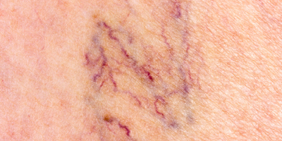 laser thread vein removal treatments at Wentworth clinic