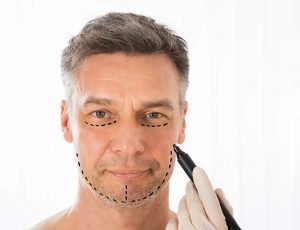 men's facelift surgery