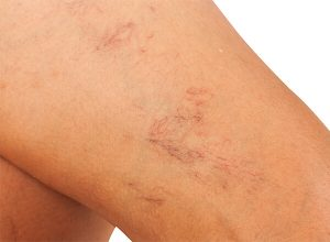 thread veins on womans thigh