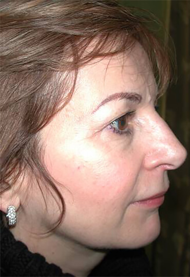 upper blepharoplasty female patient before surgery lateral view