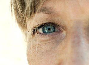 eyelid surgery for women