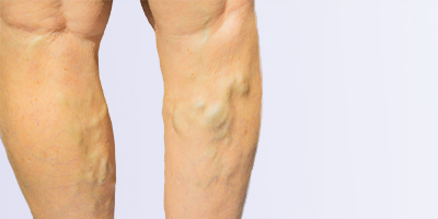 varicose veins removal with Nd: YAG laser