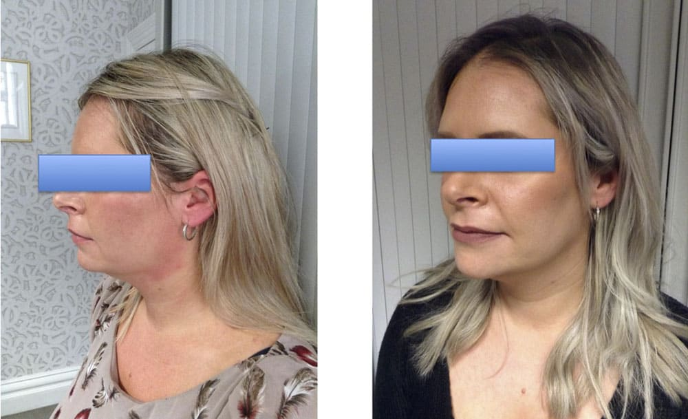 Before and after box genioplasty, female patient