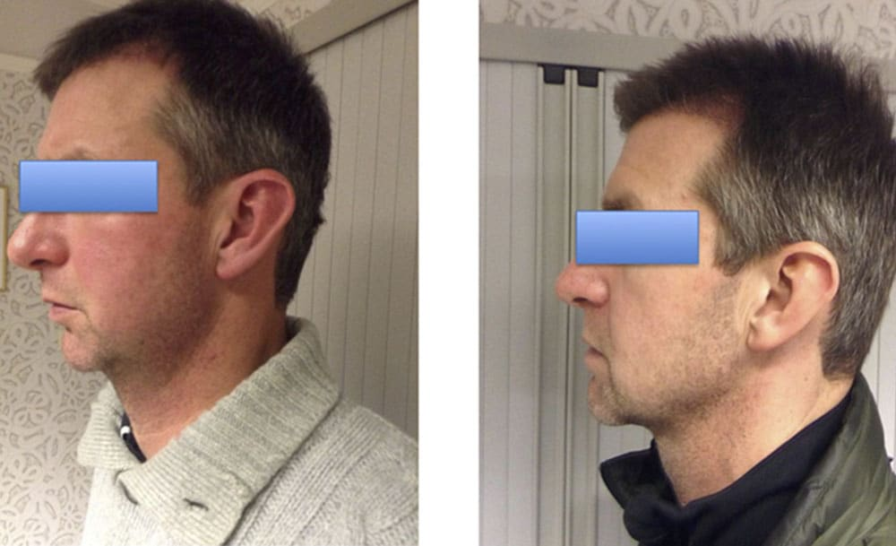 Before and after box genioplasty, male patient