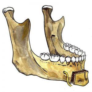 box genioplasty, mandible